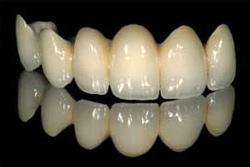 Dental-Bridges-1