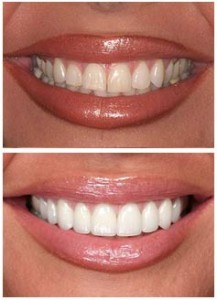 Porcelain-Crowns-Before-After-1 (1)