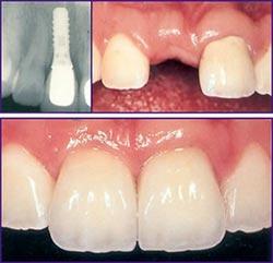 dental-implants-img2
