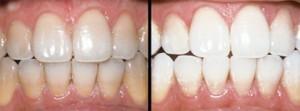 toothwhitening-img